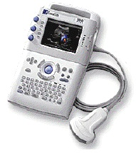 SonoSite Portable Sonography Equipment